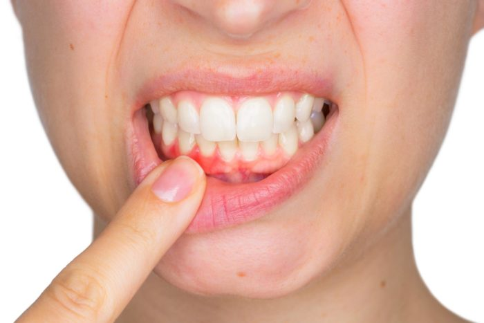 gencives-parondotologie-hayouma-ninael-dentiste-marseille-1