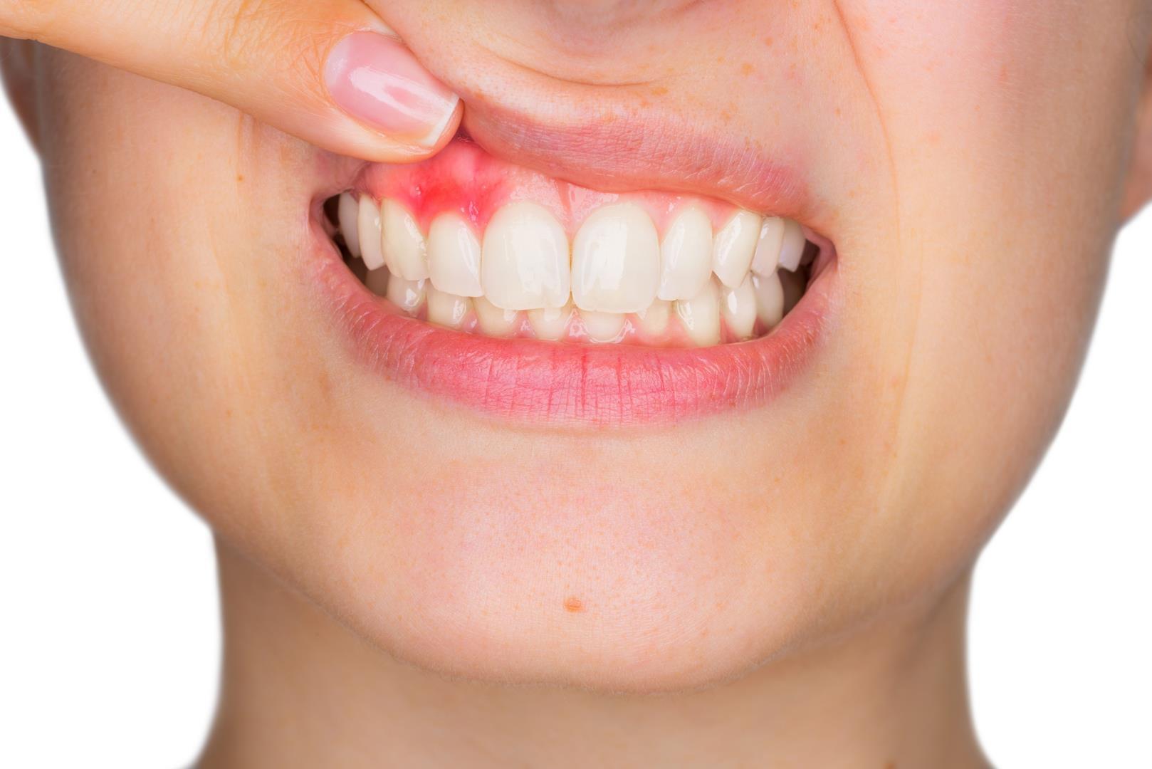 gencives-parondotologie-hayouma-ninael-dentiste-marseille-2