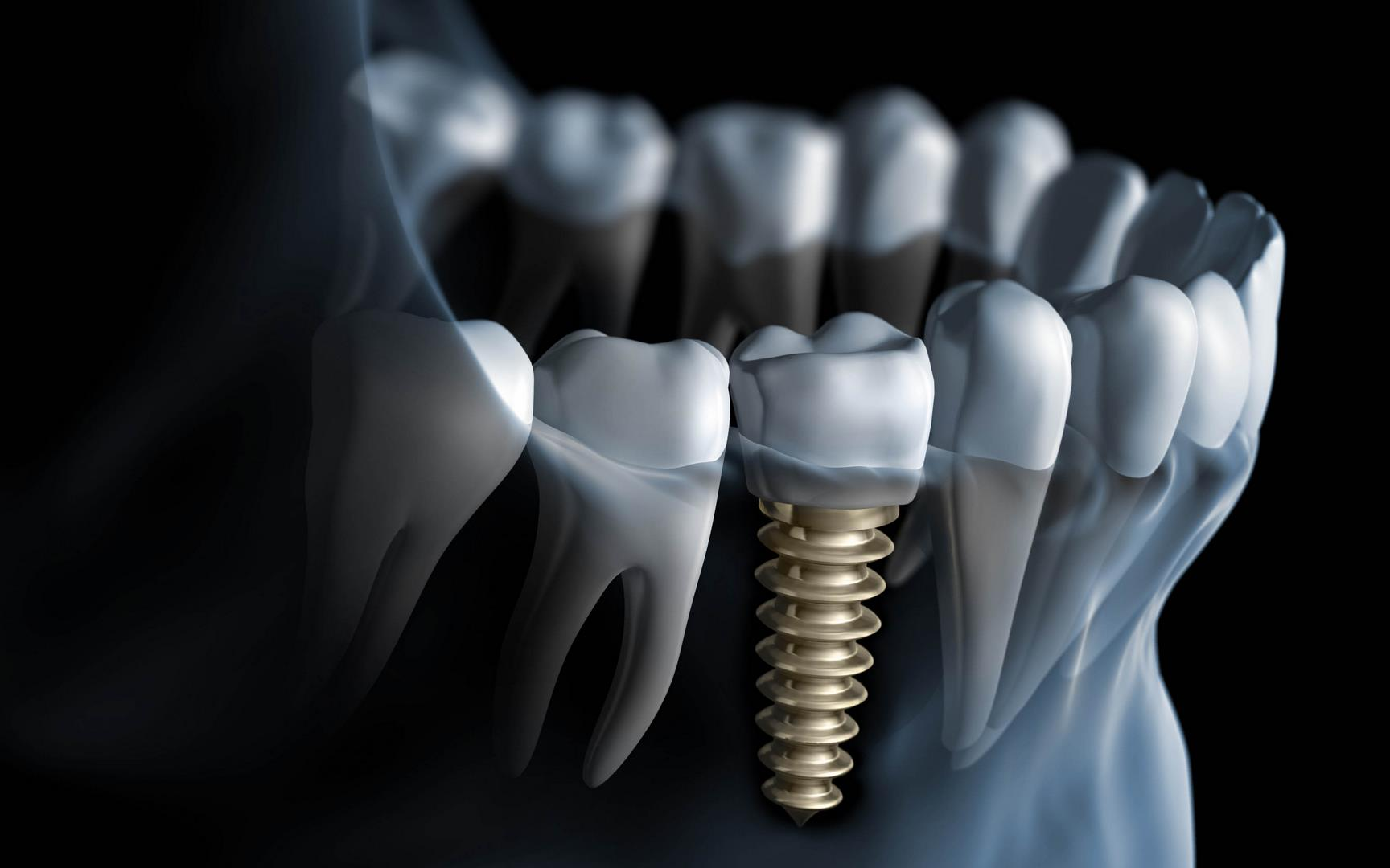 Hayouma-Ninael-dentiste-13005-implants-dentaires-1
