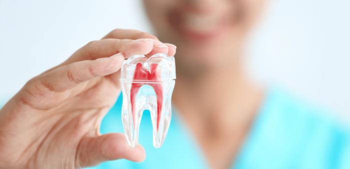 endodontie-devitalisation-dent-2