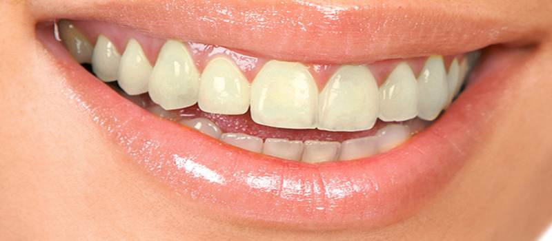 Before-Orthodontie avec aligneurs invisibles (gouttieres)